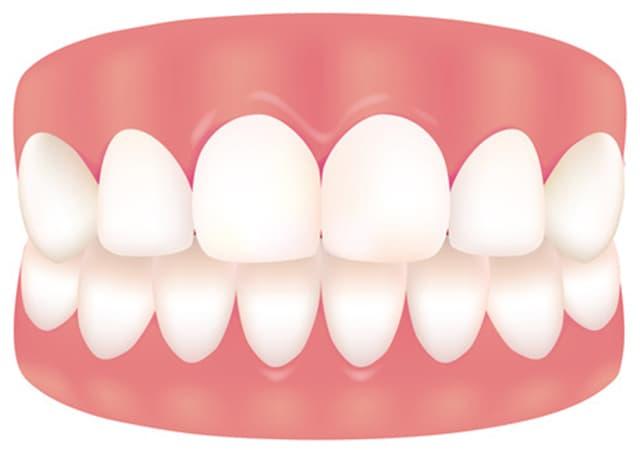 健康な歯肉
