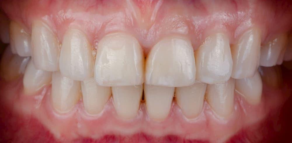 短い歯とガミースマイル