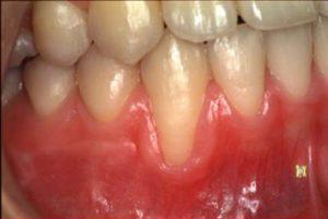 歯肉退縮の診査-1