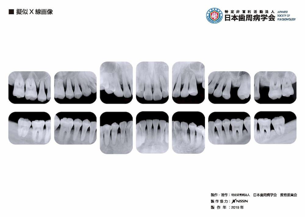 疑似X線画像
