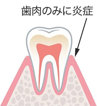 歯肉のみに炎症