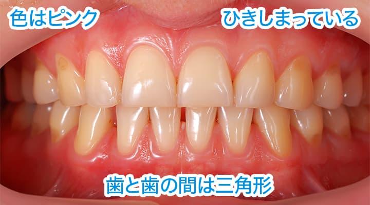 色はピンク。歯肉がひきしまっている。歯と歯の間は三角形。